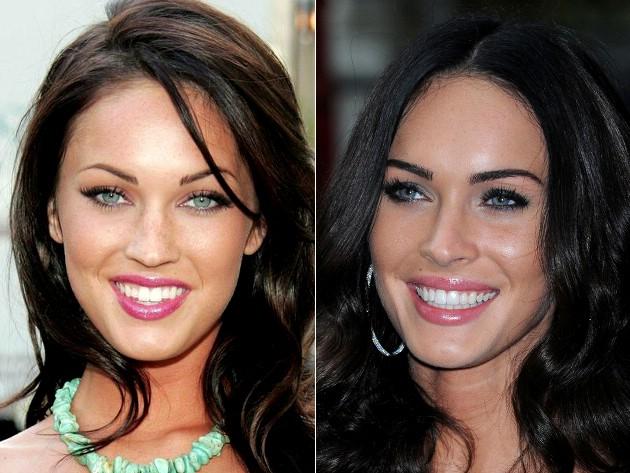 Зубы знаменитостей до и после