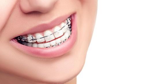 Виды стоматологических услуг