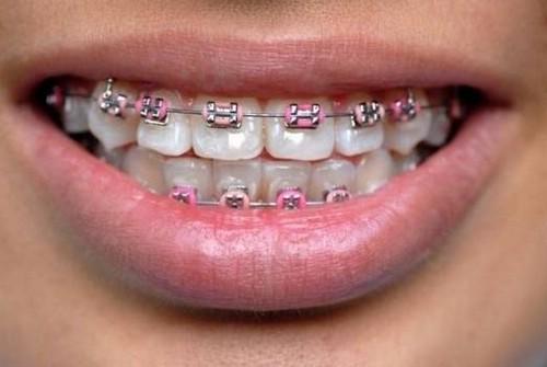 Виды ортодонтических услуг